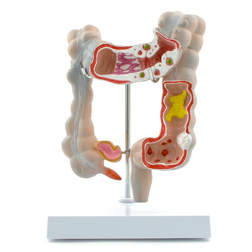 Anatomical Model Human Colon with Diseases