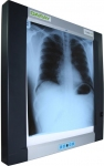 DARAY LED  X-Ray Film Viewer Wall Mounted
